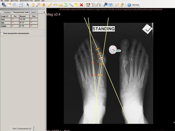 Traumacad Foot Ankle